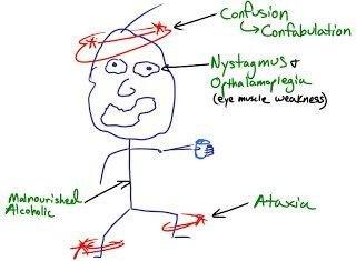 Why Does Metformin Cause Lactic Acidosis Usmle