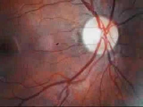 How Do You Test For Diabetic Retinopathy?