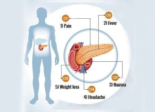 What Are The Symptoms Of Your Pancreas Not Working Properly?