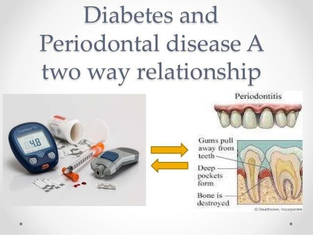 Diabetes And Periodontal Disease ,at Two Way Relationship
