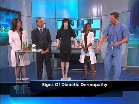 What Is Diabetic Dermopathy?