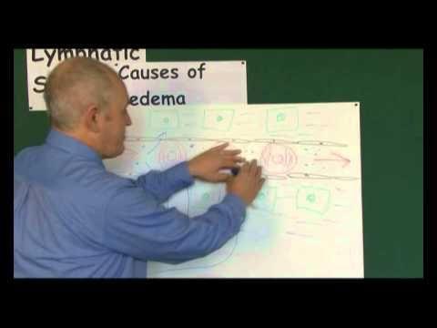 Insulin Edema Syndrome