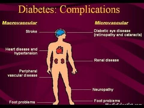 Diabetes And Diabetic Complications