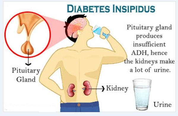 Know The Difference Between Diabetes Mellitus And Diabetes Insipidus.