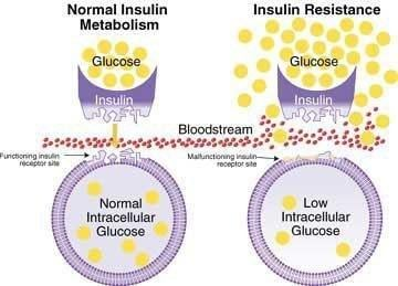 Potential Breakthrough In Treating Type 2 Diabetes