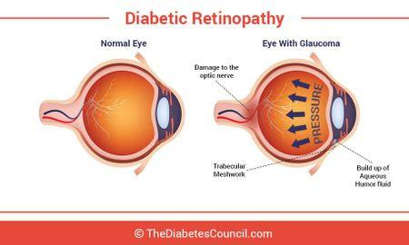 Glaucoma And Diabetes: Can Diabetes Affect Your Eyes?