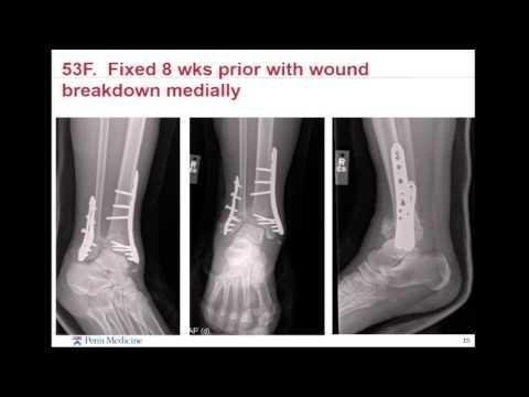 How To Treat Ankle Fractures In Patients With Diabetes
