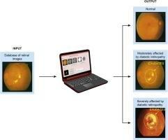 Investigation Of The Severity Level Of Diabetic Retinopathy Using Supervised Classifier Algorithms