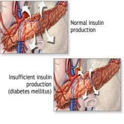 How To Prevent Diabetes Insipidus In Children