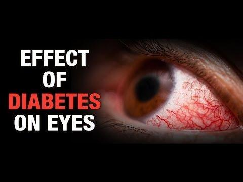 What Are The Symptoms Of Diabetic Eye Problems?