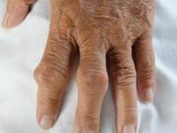 Are Diabetes And Gout Related
