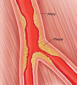 Diabetes And Peripheral Arterial Disease (pad)
