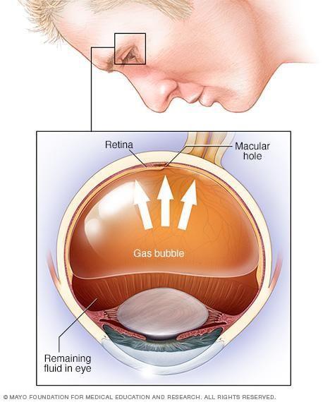 Diabetes Detached Retina Treatment