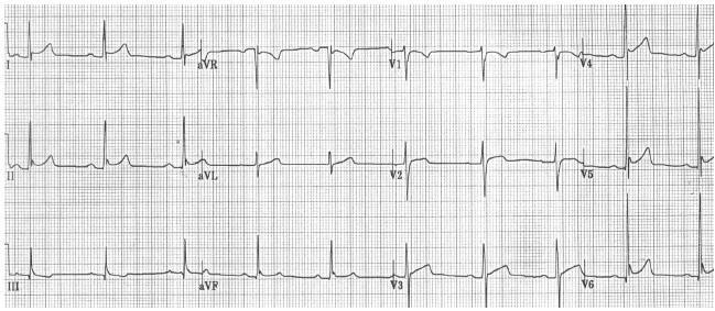 Ecg Review: Dka And Acute Mi?