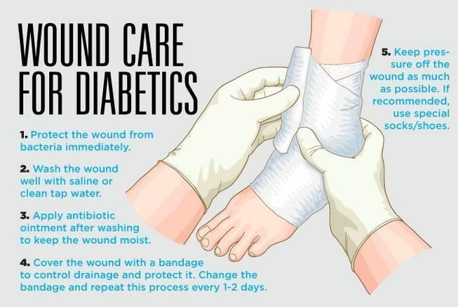Caring For Wounds And Foot Ulcers In Diabetic Patients