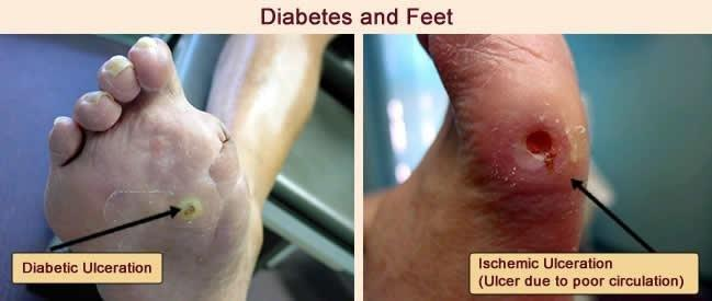 How A Podiatrist Can Help A Diabetic?