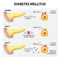 What Diabetes Is Genetic
