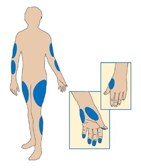 Alternate Blood Sugar Testing Sites