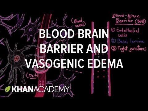 What Causes Cerebral Edema In Dka?