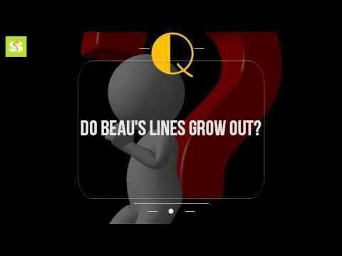 Beau's Lines Diabetes