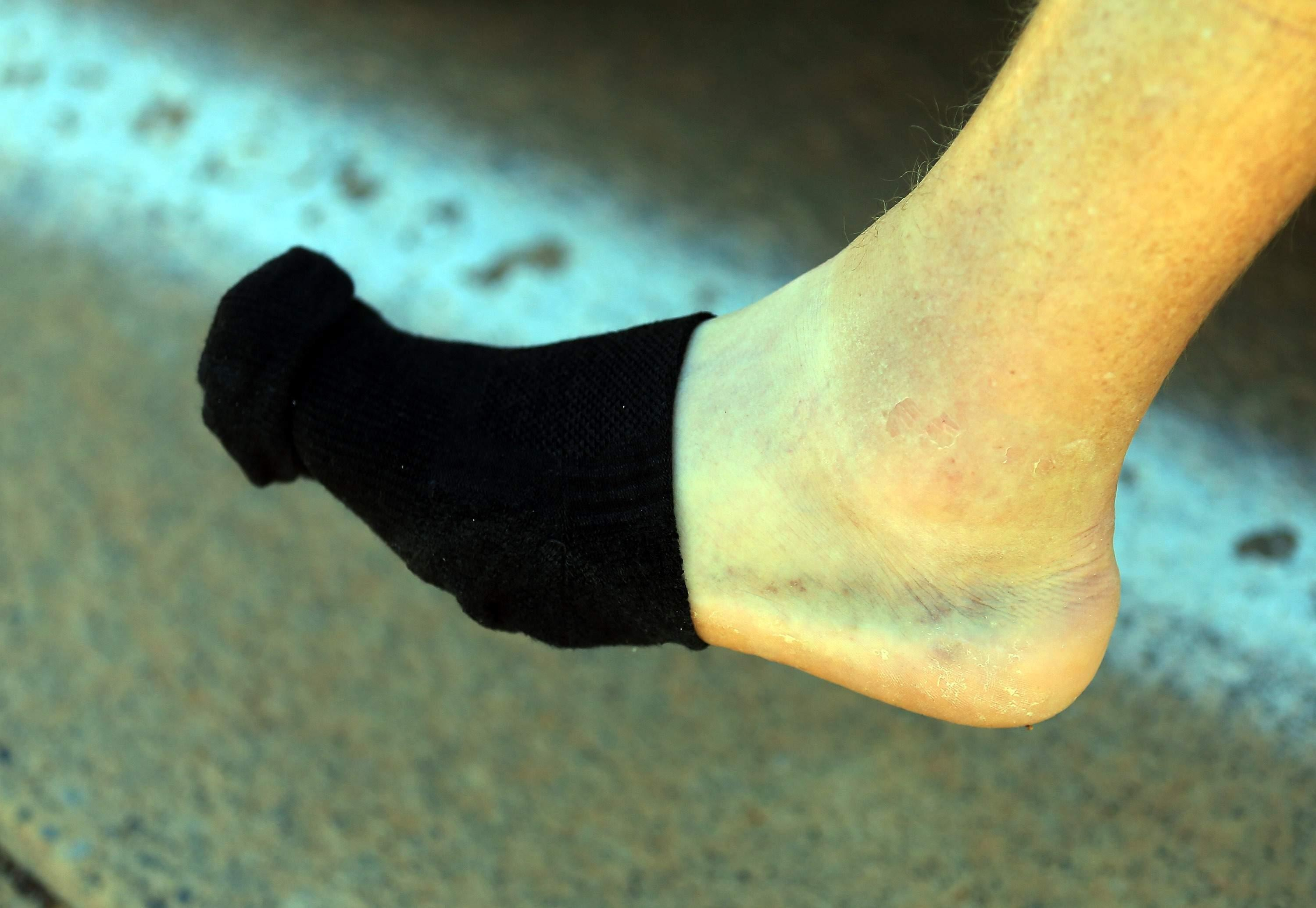Unexplained Bruising Have You Feeling Blue? Here Are Six Possible Reasons Why You Have Them