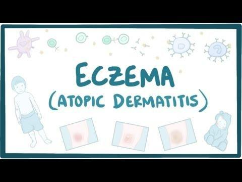 Can Metformin Cause Eczema