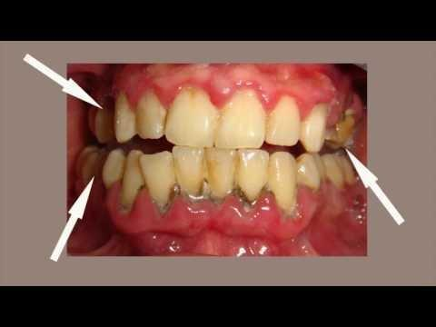 Periodontitis As A Possible Early Sign Of Diabetes Mellitus