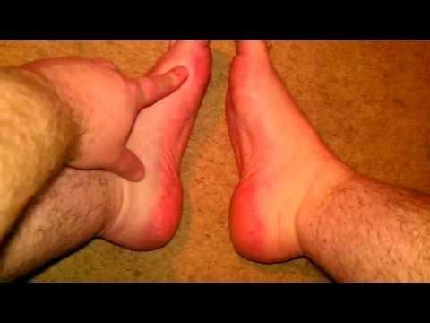 What Do Diabetes Feet Look Like