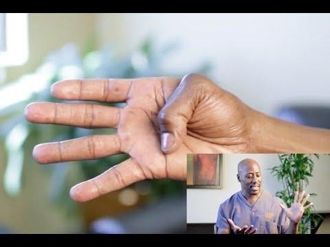 Why Does Diabetes Cause Trigger Finger