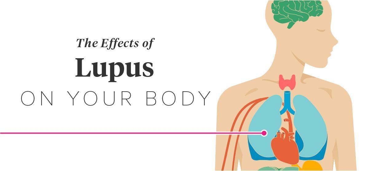 Diabetes Lupus