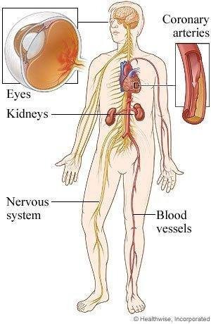 Organs Affected By Diabetes Type 2