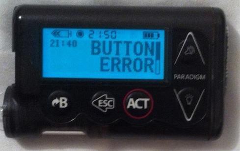 Button Error On My Insulin Pump: Will Medtronic Come Through?