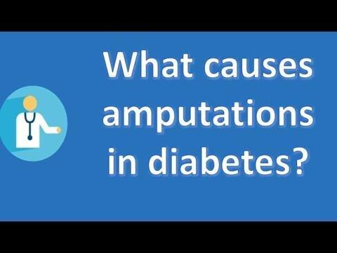 Diabetes Hospitalization Causes