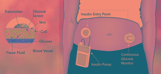 What Does Cgm Stand For In Diabetes?
