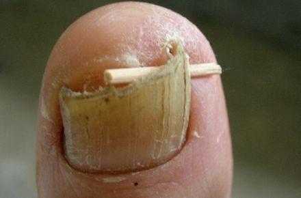 Brittle Toenails And Diabetes