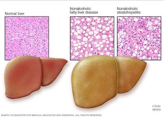 Fatty Liver And Pancreas Symptoms