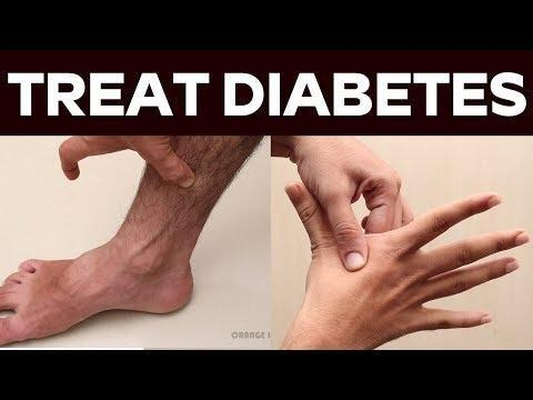 Treat Diabetes Naturally || Acupressure Points For Diabetes