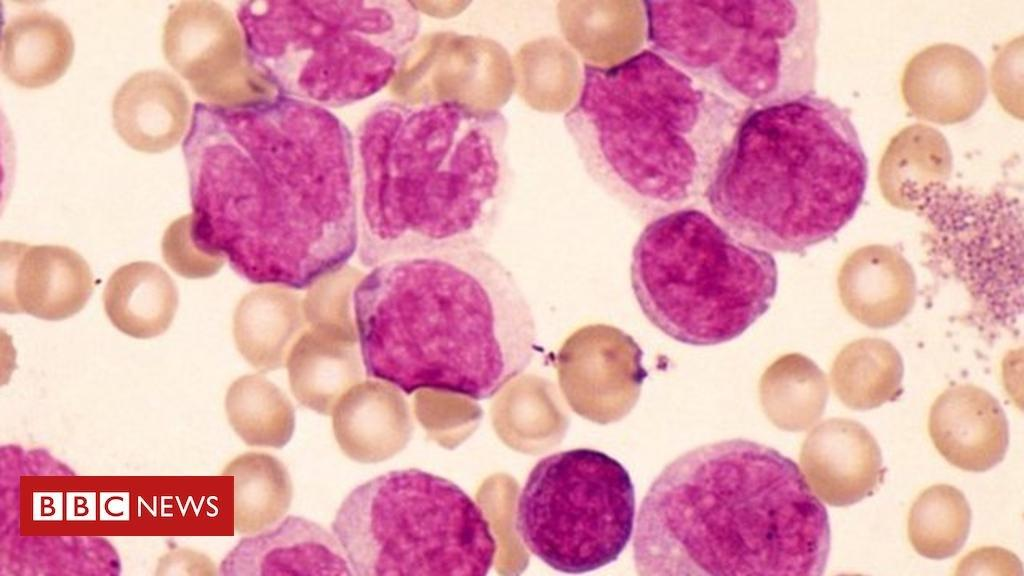 Diabetes drug may help in leukaemia