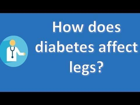 Diabetes Leg Swelling And Redness