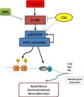 Novel Curcumin Analog C66 Prevents Diabetic Nephropathy Via Jnk Pathway With The Involvement Of P300/cbp-mediated Histone Acetylation