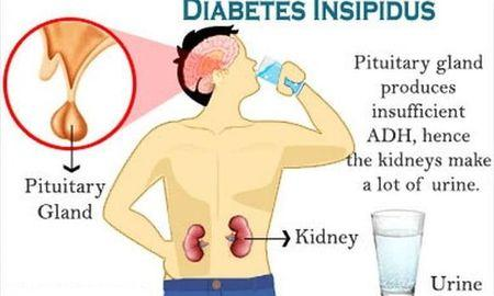 What Is The Difference Between Diabetes Mellitus And Diabetes Insipidus?