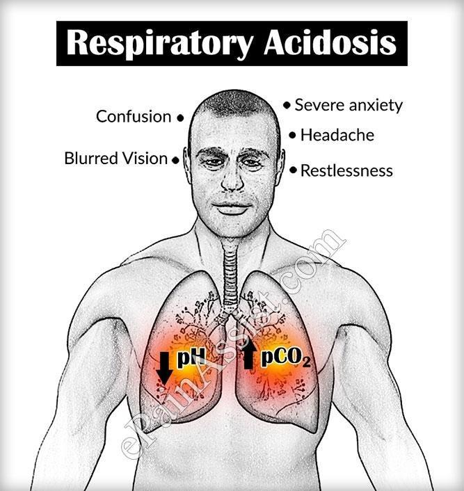 Respiratory Acidosis: Types, Causes, Symptoms, Treatment