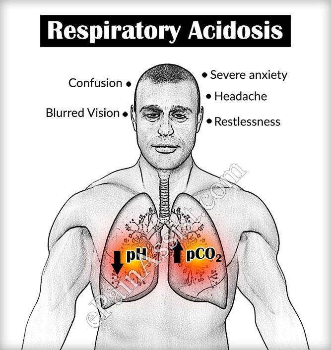 What Are The Signs And Symptoms Of Respiratory Acidosis?