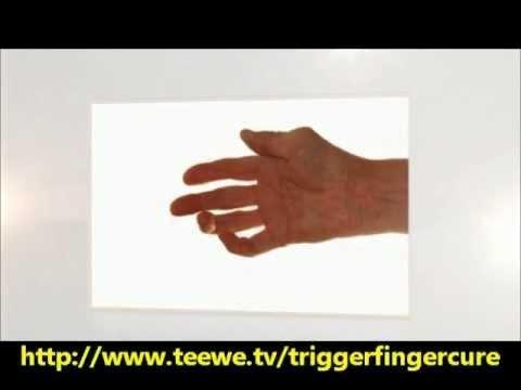Treatment Of Trigger Finger In Patients With Diabetes Mellitus