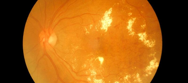 Ada: Diabetic Retinopathy Management Guidelines Issued