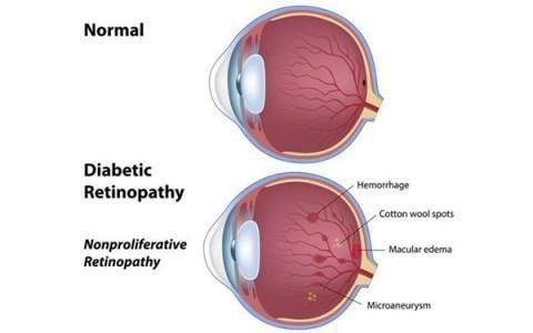 Diabetic Retinopathy In Only One Eye