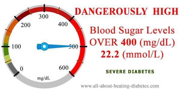 Blood Sugar Level Over 400 Mg/dl