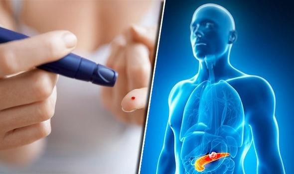 Diabetes Symptoms: Have You Been Misdiagnosed With Type 2? Signs You Have Type 3c
