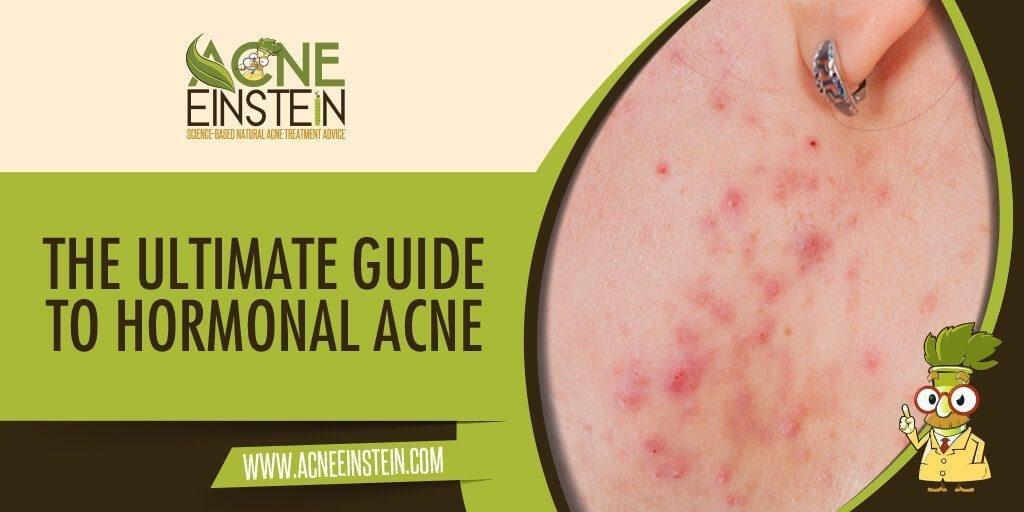 The Ultimate Guide To Hormonal Acne