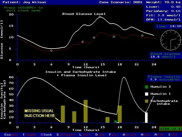 Aida Interactive Educational Freeware Diabetes Simulator